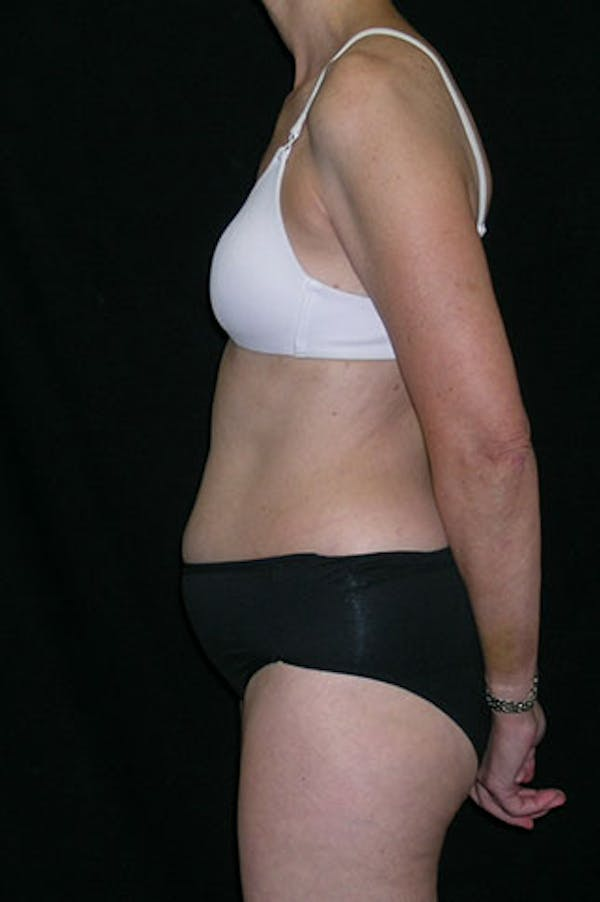 Tummy Tuck Gallery - Patient 23533850 - Image 3