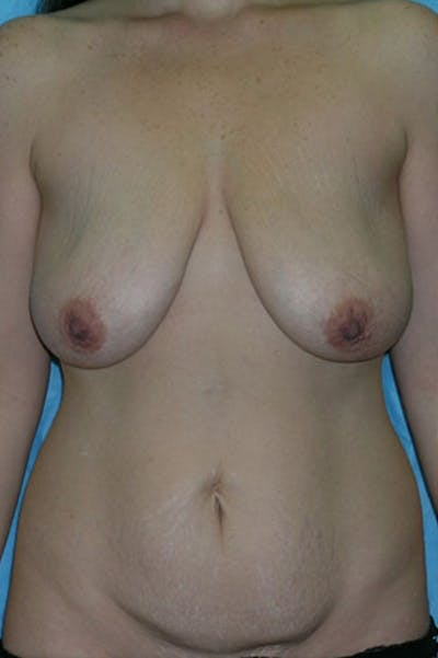 Mommy Makeover Gallery - Patient 23533851 - Image 1