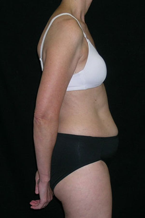 Tummy Tuck Gallery - Patient 23533850 - Image 5