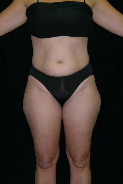 Liposuction & SmartLipo Gallery - Patient 23533854 - Image 1
