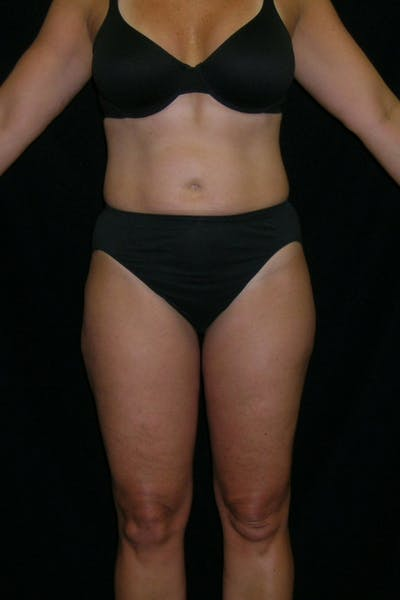 Liposuction & SmartLipo Gallery - Patient 23533854 - Image 2