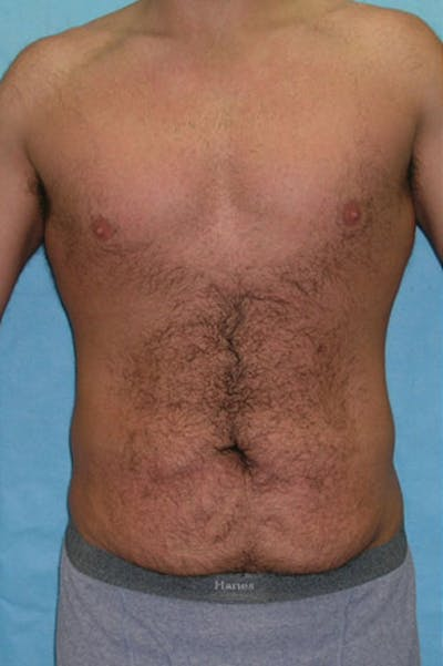 Tummy Tuck Gallery - Patient 23533857 - Image 1