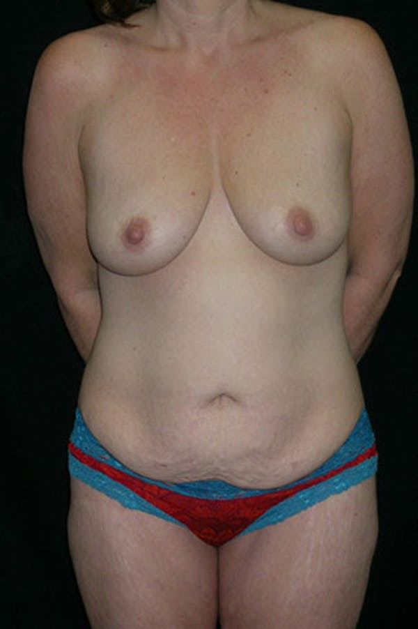 Mommy Makeover Gallery - Patient 23533867 - Image 1