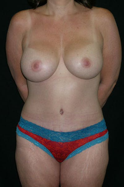 Mommy Makeover Gallery - Patient 23533867 - Image 2