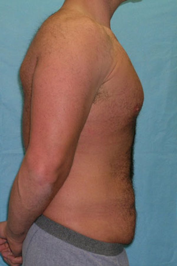 Tummy Tuck Gallery - Patient 23533857 - Image 3