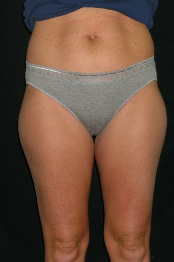 Liposuction & SmartLipo Gallery - Patient 23533856 - Image 1