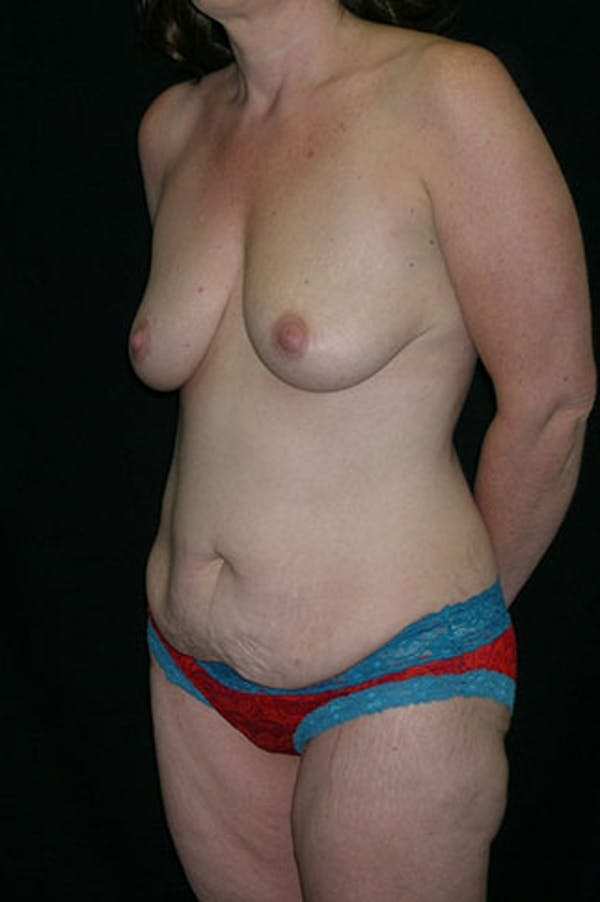 Mommy Makeover Gallery - Patient 23533867 - Image 3