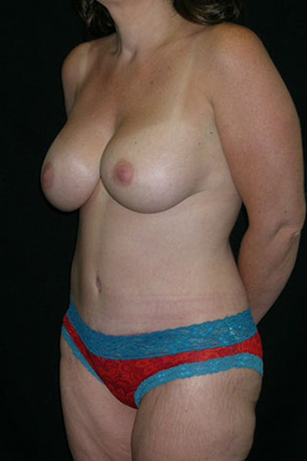 Mommy Makeover Gallery - Patient 23533867 - Image 4