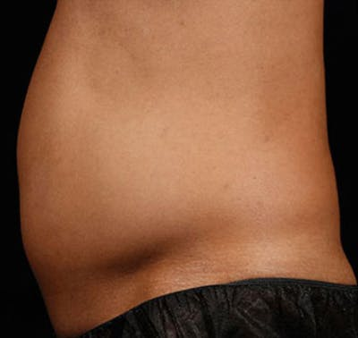 SculpSure Gallery - Patient 23533858 - Image 1