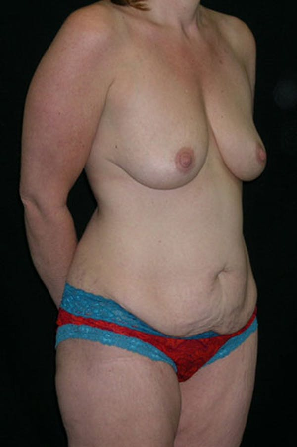 Mommy Makeover Gallery - Patient 23533867 - Image 5