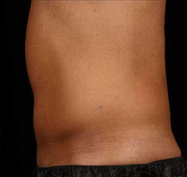 SculpSure Gallery - Patient 23533858 - Image 2