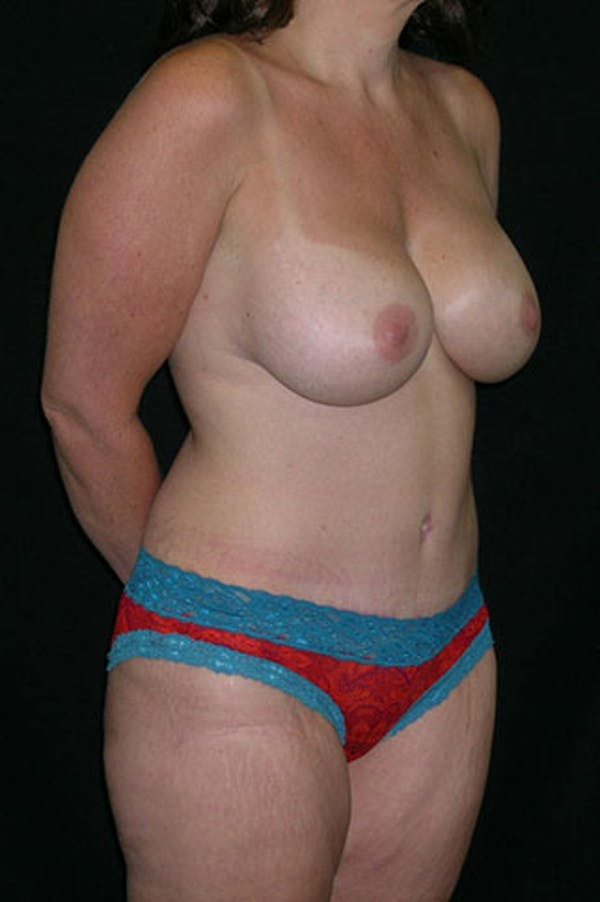 Mommy Makeover Gallery - Patient 23533867 - Image 6