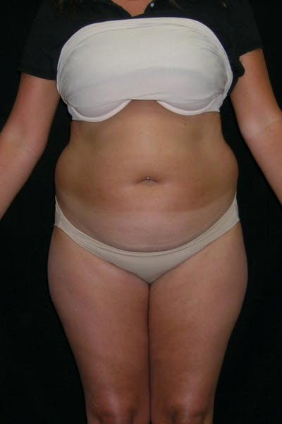 Liposuction & SmartLipo Gallery - Patient 23533860 - Image 1