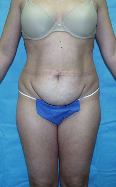 Tummy Tuck Gallery - Patient 23533866 - Image 1