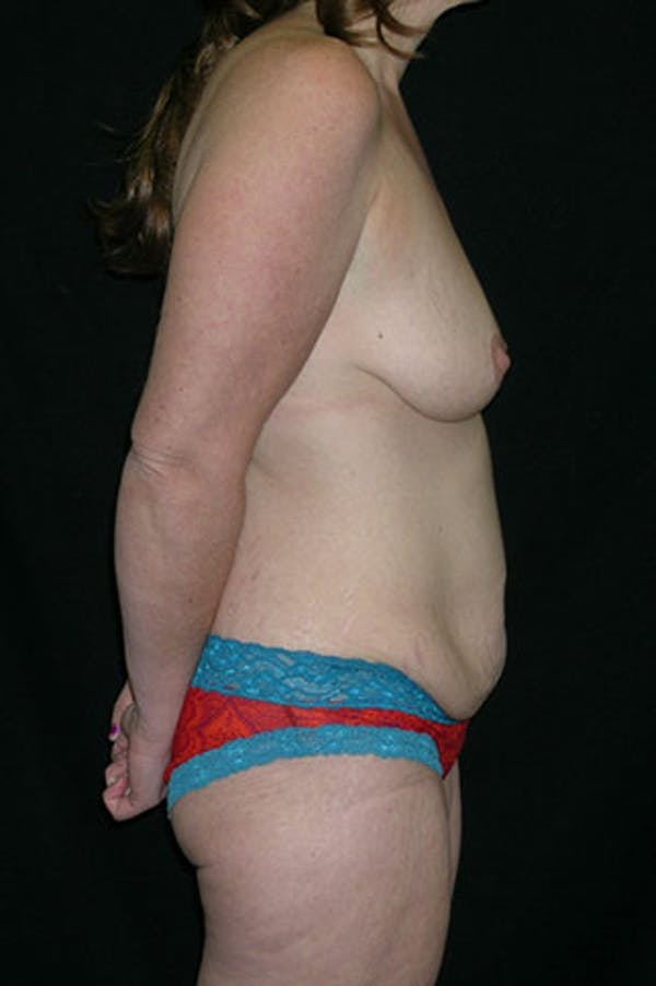 Mommy Makeover Gallery - Patient 23533867 - Image 7