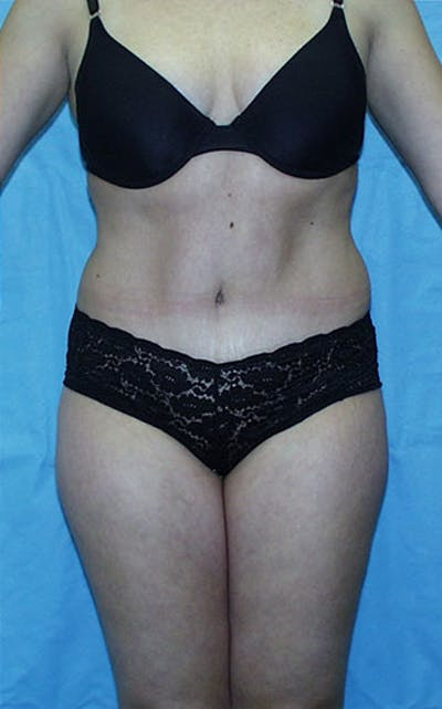Tummy Tuck Gallery - Patient 23533866 - Image 2