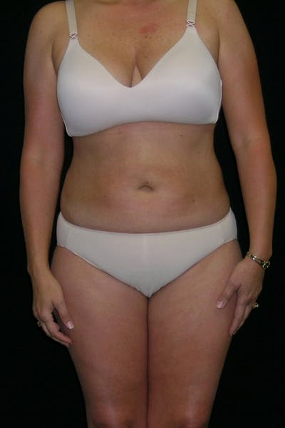 Liposuction & SmartLipo Gallery - Patient 23533860 - Image 2