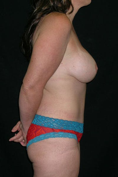 Mommy Makeover Gallery - Patient 23533867 - Image 8