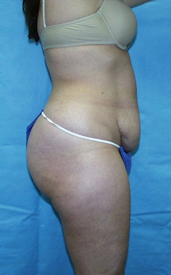 Tummy Tuck Gallery - Patient 23533866 - Image 3