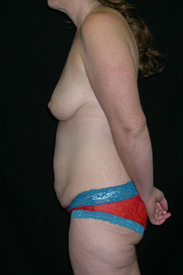 Mommy Makeover Gallery - Patient 23533867 - Image 9
