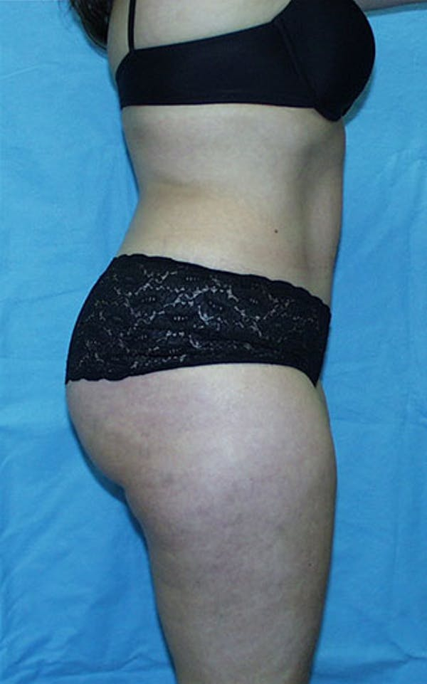 Tummy Tuck Gallery - Patient 23533866 - Image 4