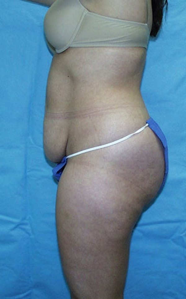 Tummy Tuck Gallery - Patient 23533866 - Image 5