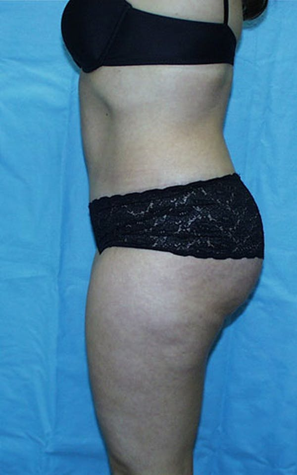 Tummy Tuck Gallery - Patient 23533866 - Image 6