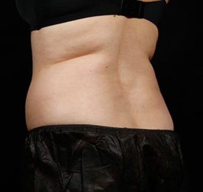 SculpSure Gallery - Patient 23533869 - Image 1