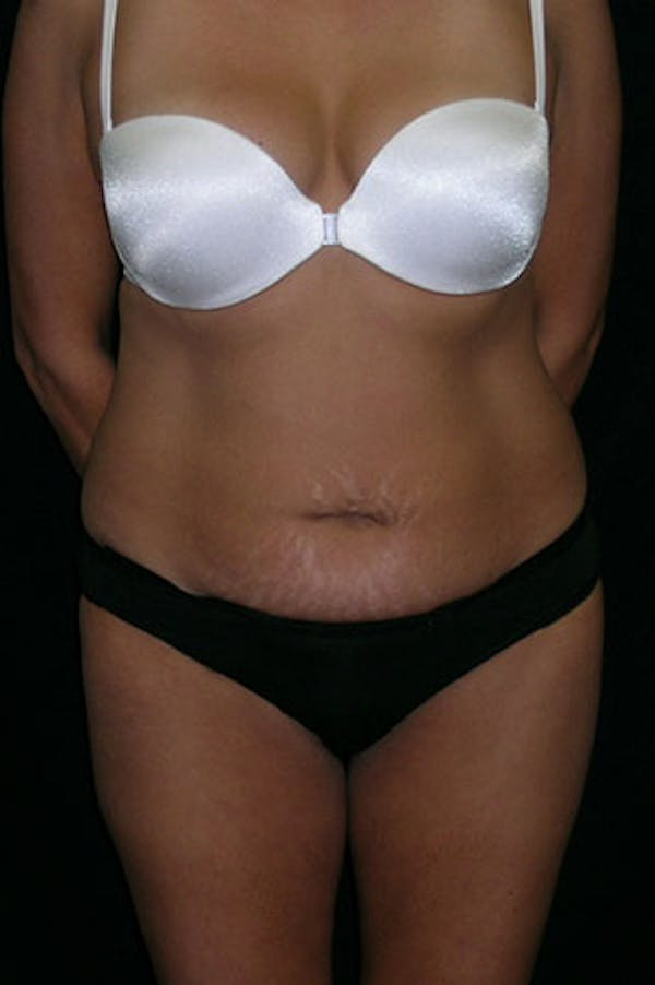Tummy Tuck Gallery - Patient 23533876 - Image 1