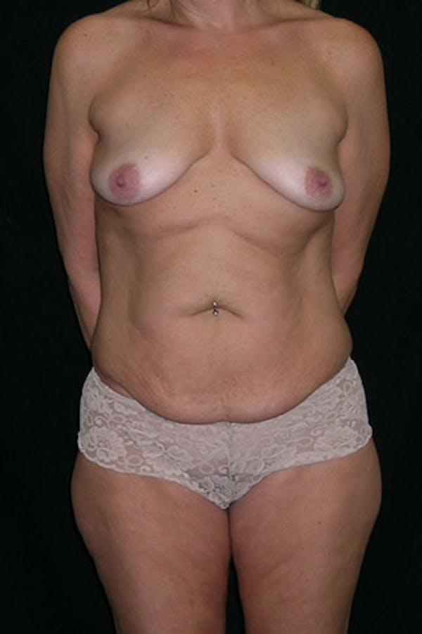 Mommy Makeover Gallery - Patient 23533879 - Image 1