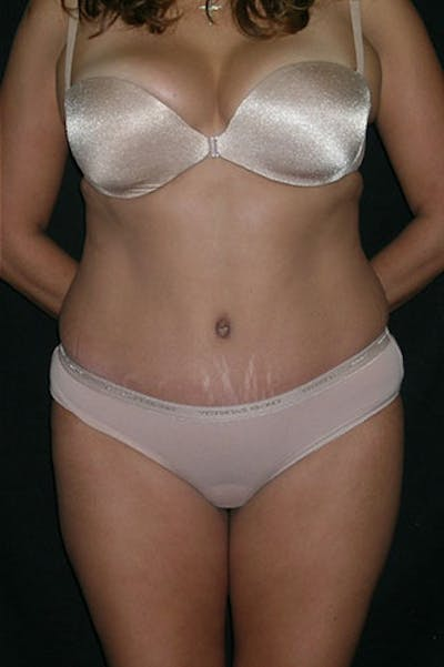 Tummy Tuck Gallery - Patient 23533876 - Image 2