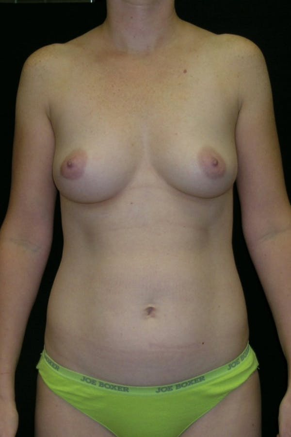 Liposuction & SmartLipo Gallery - Patient 23533874 - Image 1