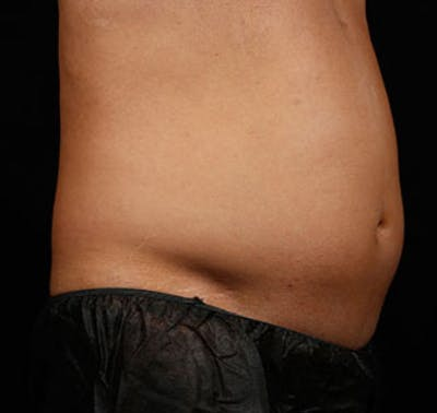 SculpSure Gallery - Patient 23533873 - Image 1