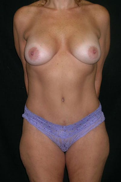 Mommy Makeover Gallery - Patient 23533879 - Image 2