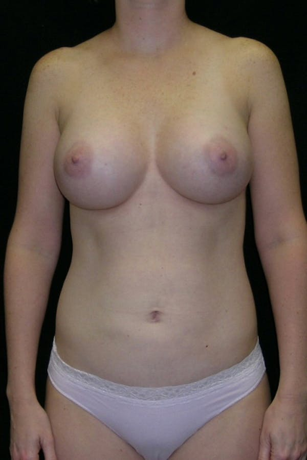 Liposuction & SmartLipo Gallery - Patient 23533874 - Image 2