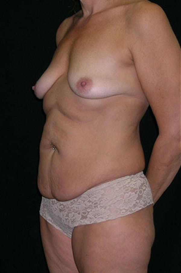 Mommy Makeover Gallery - Patient 23533879 - Image 3