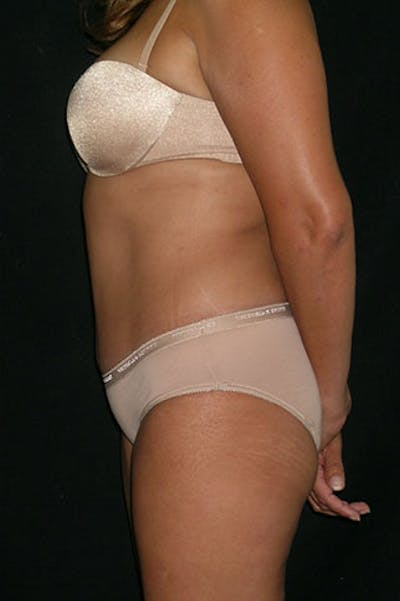 Tummy Tuck Gallery - Patient 23533876 - Image 4