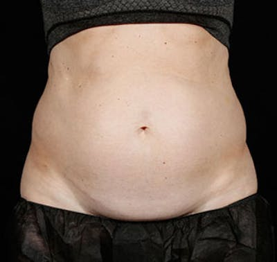 SculpSure Gallery - Patient 23533875 - Image 1