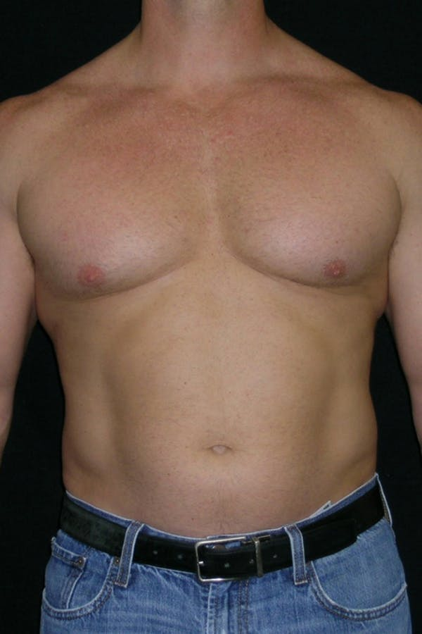 Liposuction & SmartLipo Gallery - Patient 23533877 - Image 1