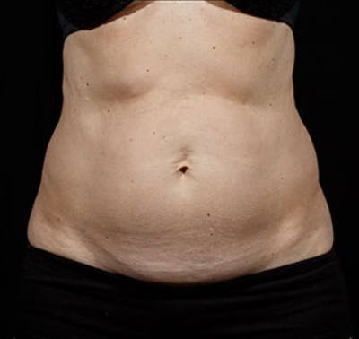 SculpSure Gallery - Patient 23533875 - Image 2