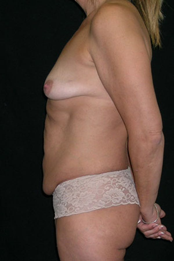 Mommy Makeover Gallery - Patient 23533879 - Image 5