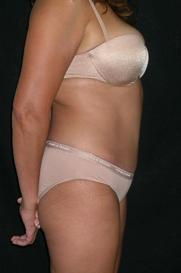 Tummy Tuck Gallery - Patient 23533876 - Image 6