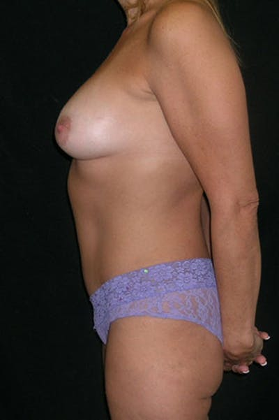 Mommy Makeover Gallery - Patient 23533879 - Image 6