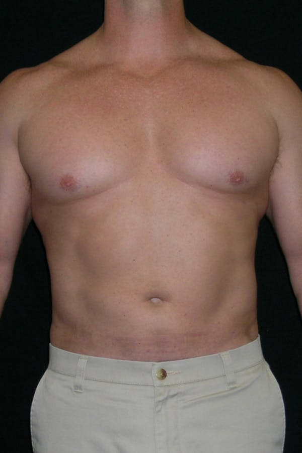 Liposuction & SmartLipo Gallery - Patient 23533877 - Image 2