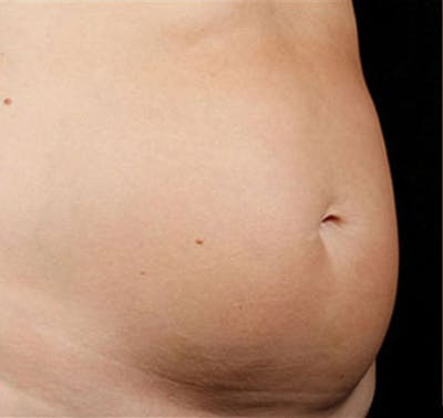 SculpSure Gallery - Patient 23533878 - Image 1