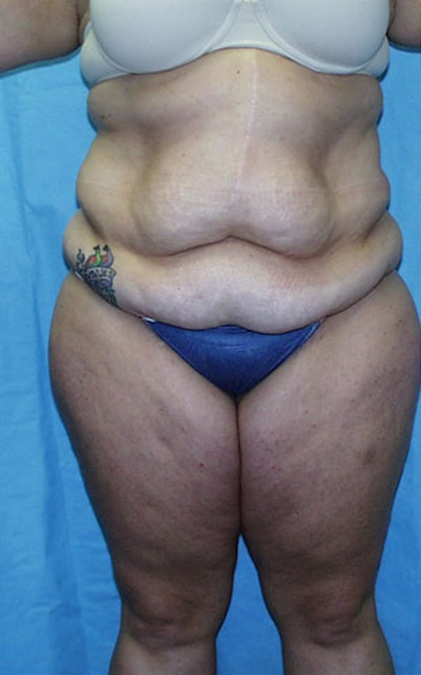 Tummy Tuck Gallery - Patient 23533882 - Image 1