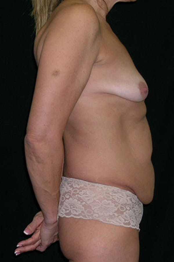 Mommy Makeover Gallery - Patient 23533879 - Image 7