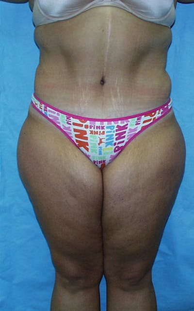 Tummy Tuck Gallery - Patient 23533882 - Image 2