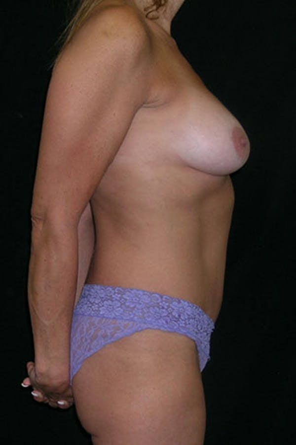 Mommy Makeover Gallery - Patient 23533879 - Image 8
