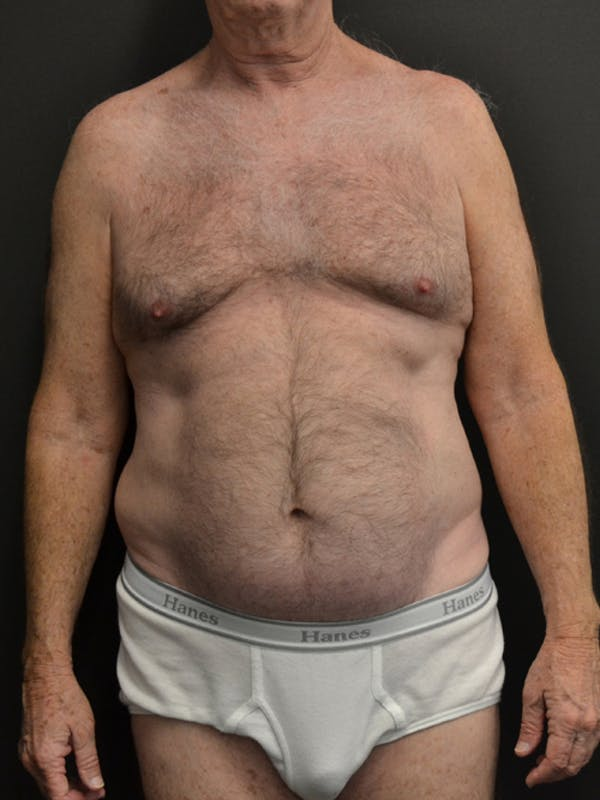 Liposuction & SmartLipo Gallery - Patient 23533888 - Image 1